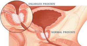 About 1 in 6 men will be diagnosed with Prostate Cancer in their lives.
