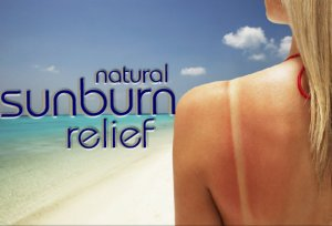 natural-sunburn-remedies-banner-490504_650x488